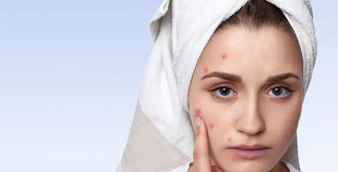 Hijabers Cobalah! Beberapa Kiat Mudah Supaya Aman dari Jerawat Karena Makeup
